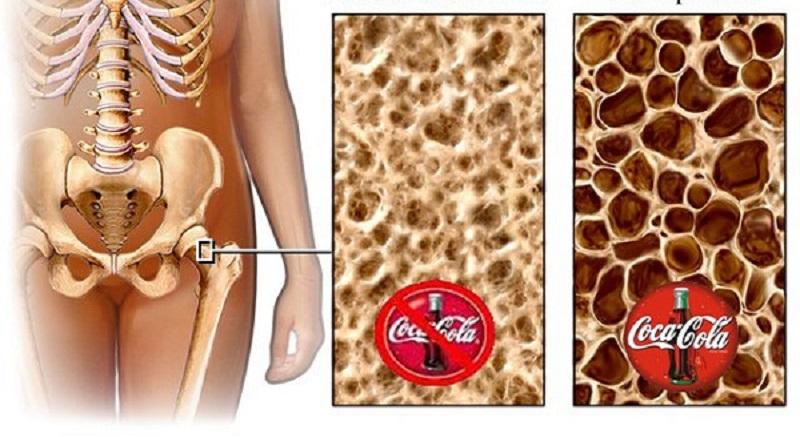 заболевания костей и суставов остеопороз