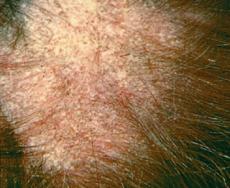 anusi-rakom-krupno-foto